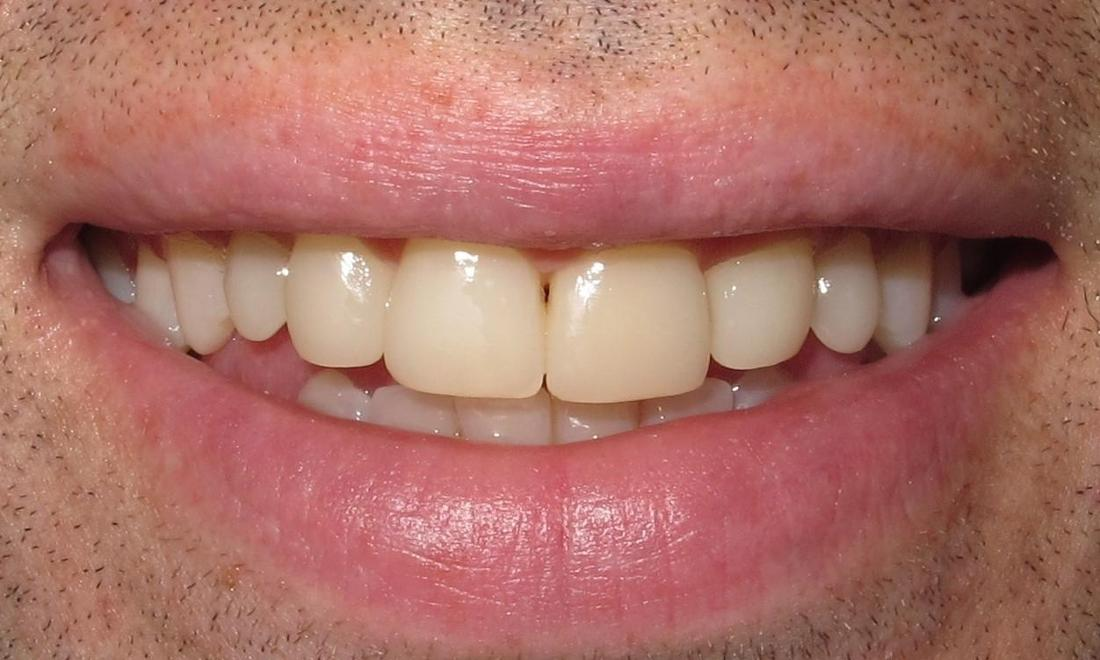 Composite veneer after | Chantilly Va dentist