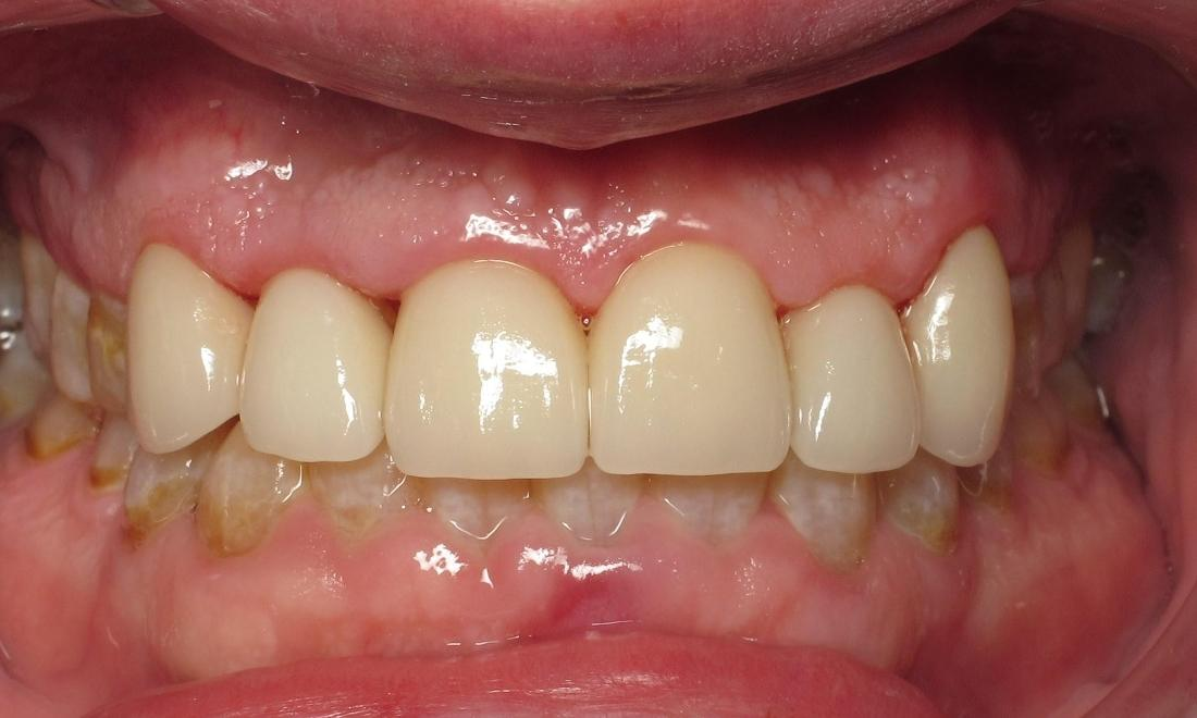 Porcelain crowns after | Chantilly Va dentist