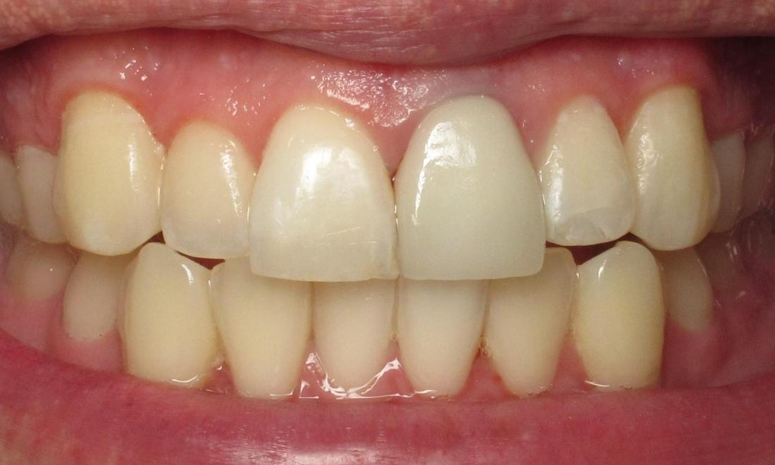 Crown replacement after | chantilly VA dentist