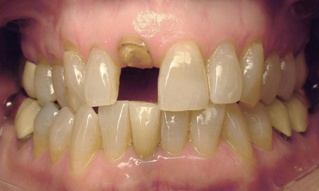 Dental implant front tooth before | Chantilly Va dentist