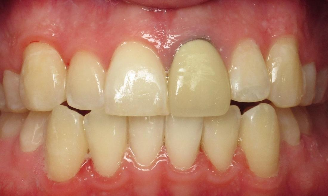 Crown replacement before | chantilly VA dentist
