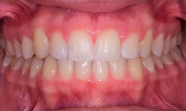 Beautiful-Smile-with-Invisalign-After-Image