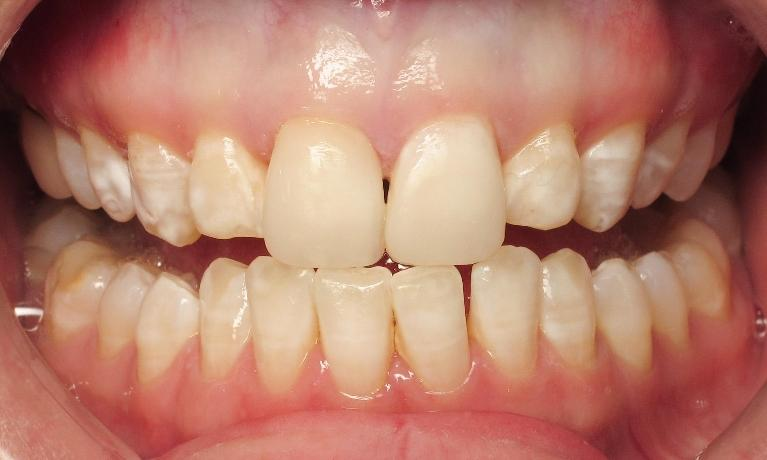 Cosmetic-Dentistry-with-Dental-Bondings-After-Image