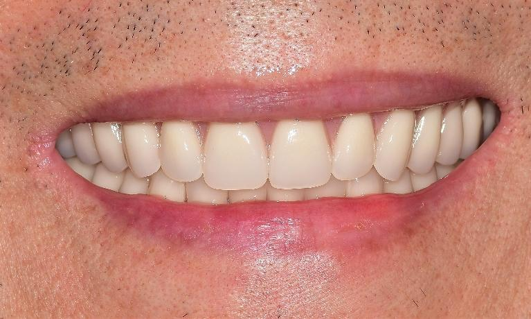 Youthful-Smile-with-Dentures-After-Image