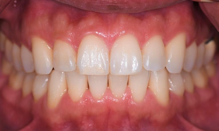 Straighten-Your-Teeth-with-Invisalign-After-Image