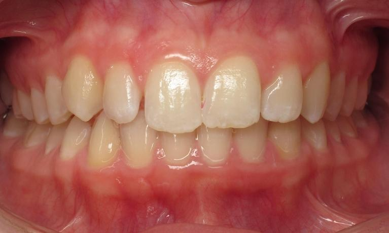 Beautiful-Smile-with-Invisalign-Before-Image