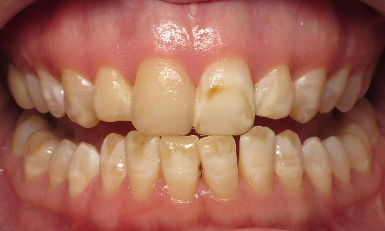 Cosmetic-Dentistry-with-Dental-Bondings-Before-Image