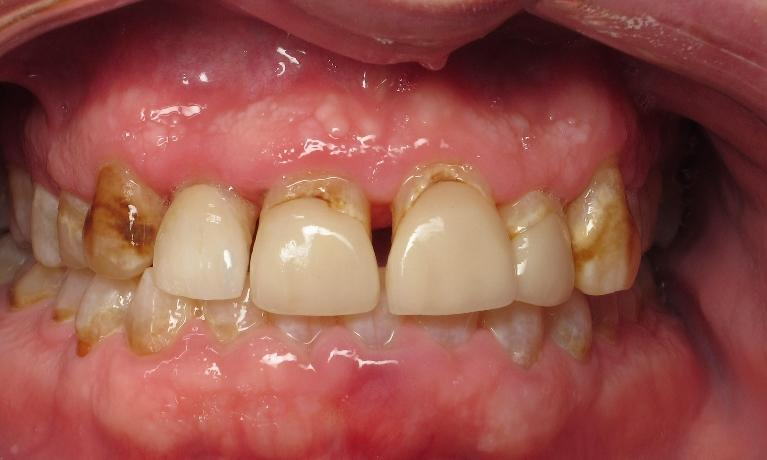 Cosmetic-Dentistry-with-Porcelain-Crowns-Before-Image