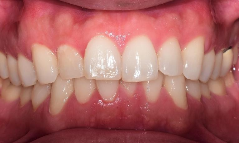 Straighten-Your-Teeth-with-Invisalign-Before-Image