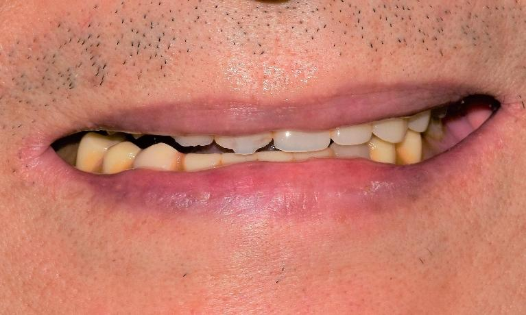 Youthful-Smile-with-Dentures-Before-Image